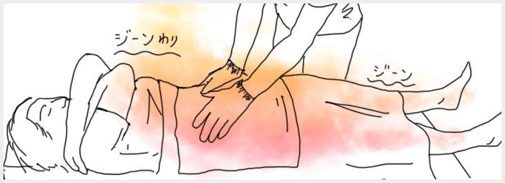 海水温熱腹部施術イメージ